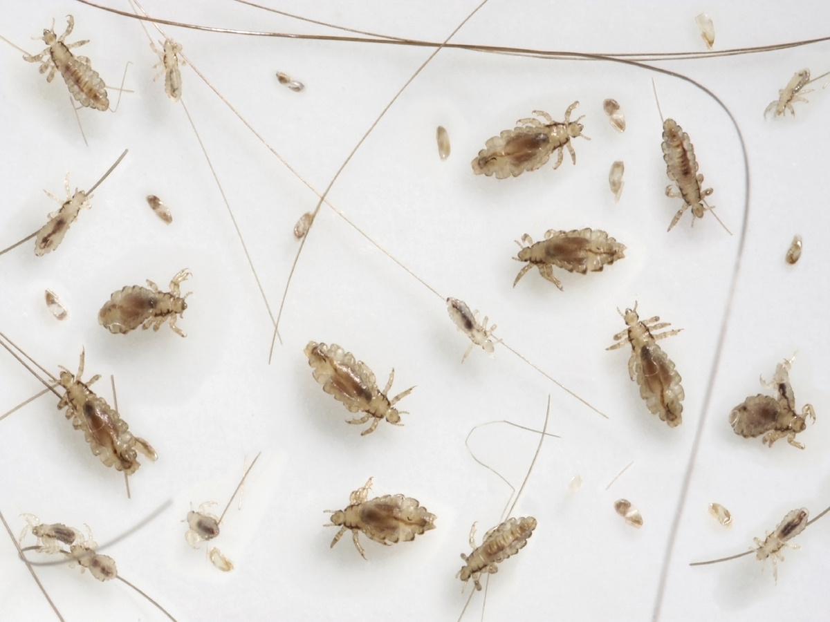 Head lice 101 What lice look like how they behave and
