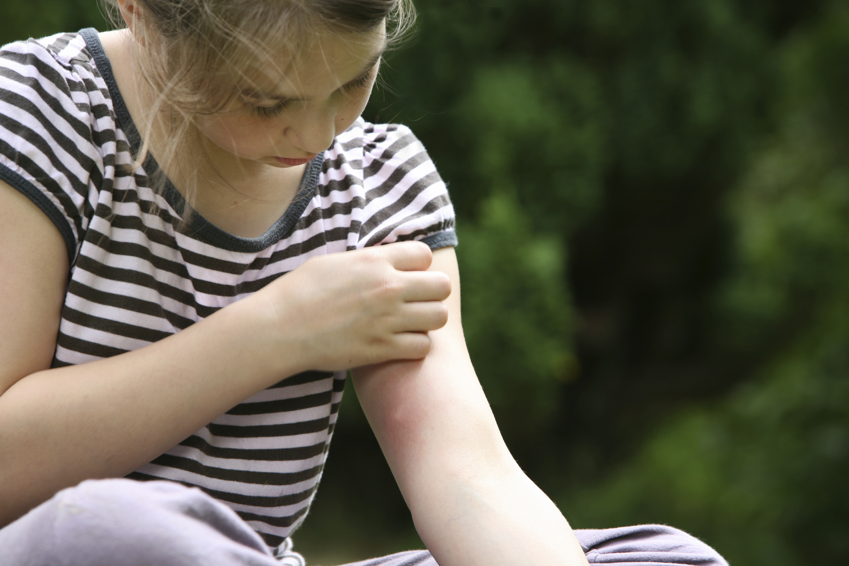 Why Do Mosquito Bites Itch? Information on Mosquito Bites